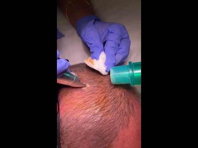 Seborrheic Keratosis treatment by Dr Nisha Jha