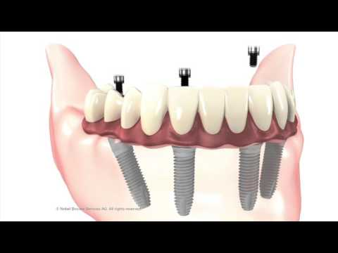 Dental Implants Change Man's Life In A Day: Anacapa Dental Los Angeles