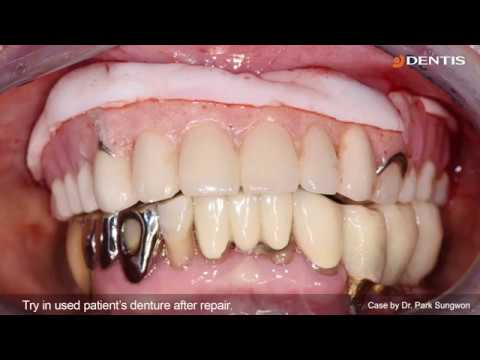 [DENTIS Implant] Maxillary Implant Installation through SIMPLE GUIDE Plus System (OneQ-SL)