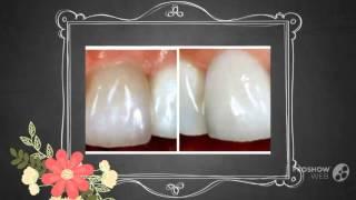 отбеливание зубов без повреждения эмали   - Как сделать зубы белее