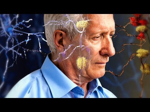 Alzheimer's or Forgetfulness? How to Tell the Difference