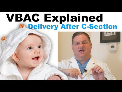 VBAC/TOLAC Explained. Everything about delivery after c-section.