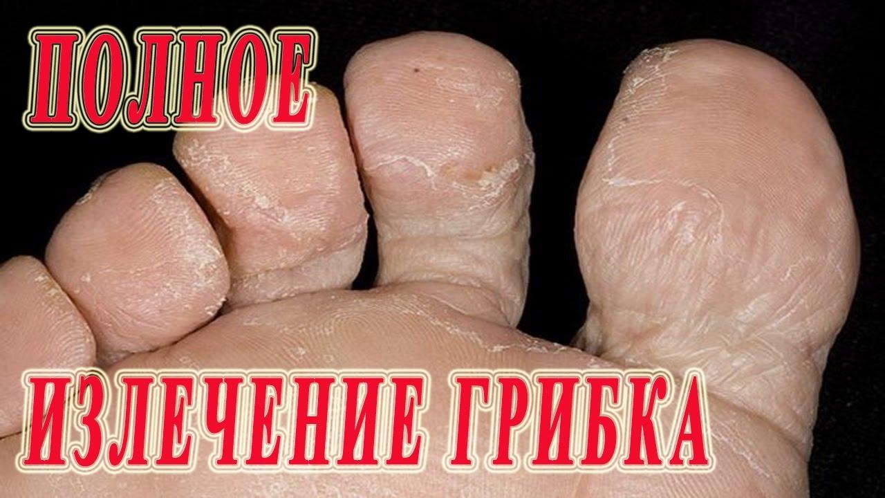 Народное средство от грибка меж пальцев ног