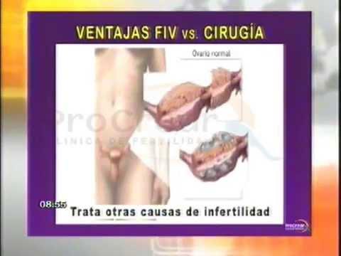 75ac3439041 PROCREAR: ¿Después de la ligadura de trompas, puedo quedar embarazada?