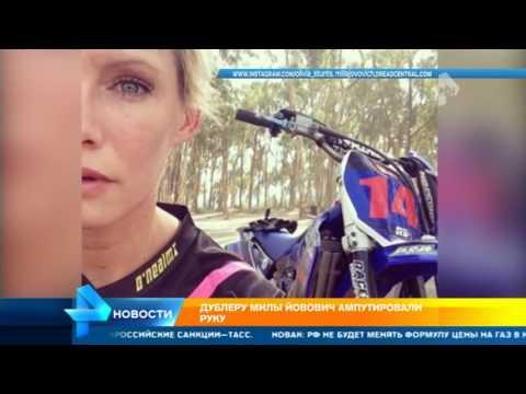 Двойник Милы Йовович выложила в Сети фото после ампутации руки