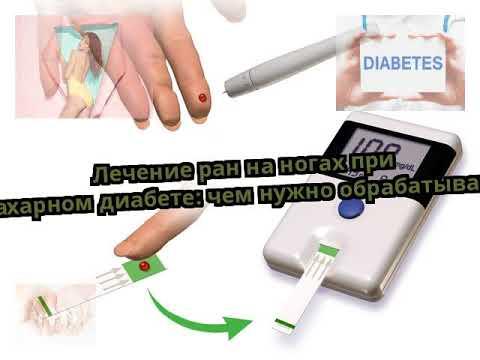 Лечение ран на ногах при сахарном диабете: чем нужно обрабатывать