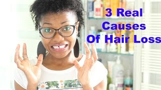 3 Main Causes For Hair Loss, Thinning Hair & Alopecia | Thin Fine Hair | Josiphia Rizado