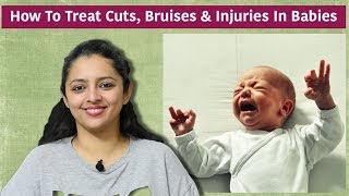 How To Treat Cuts, Bumps, Bruises & Injuries In Babies