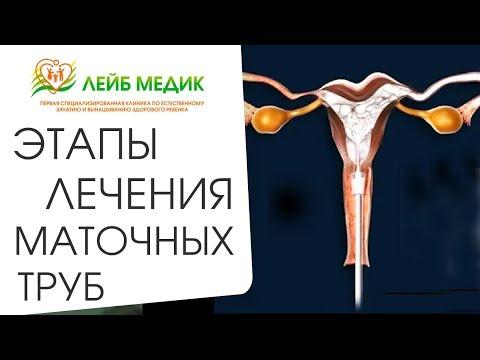 🤰 Комплексное лечение патологий маточных труб. Лечение маточных труб. Лейб Медик. 12+