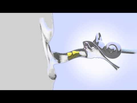 Appareil auditif Lyric.  Animation de mise en place.  www.audition44.fr