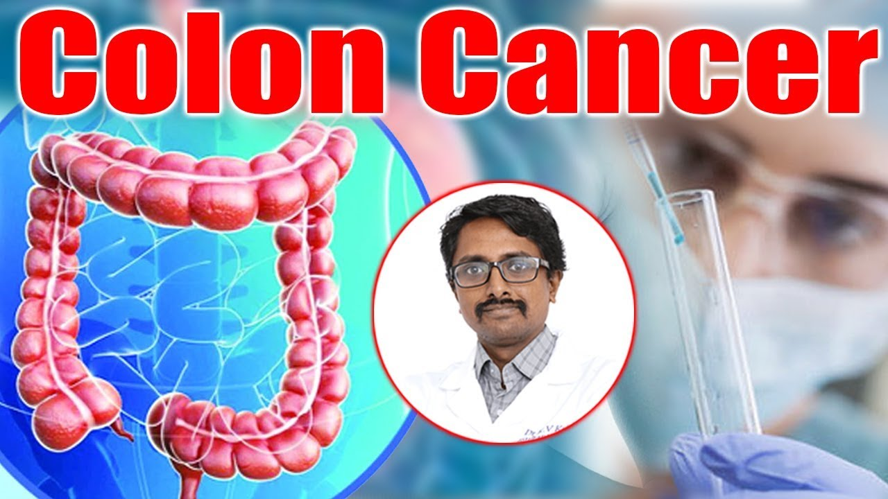 What is Colon Cancer? | Colon cancer | Diagnosis and treatment