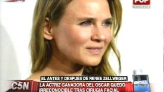 C5N - SALUD: EL ANTES Y DESPUES DE RENEE ZELLWEGER