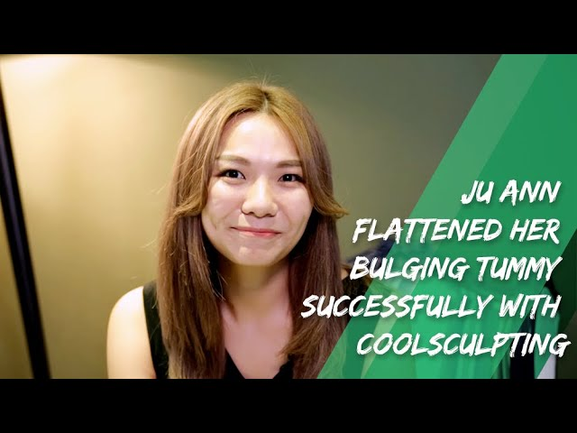 Ju Ann Flattened Her Bulging Tummy Successfully with CoolSculpting