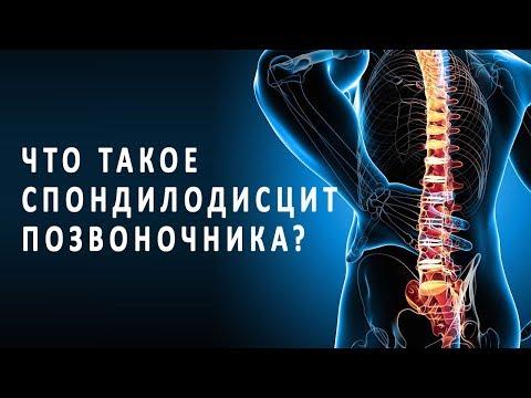 Что такое спондилодисцит позвоночника и как он лечится?