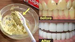 2 मिनट- गंदे पीले दांतो को सफ़ेद और चमकदार बनाने का कारगर नुस्खा | Teeth Whitening at Home