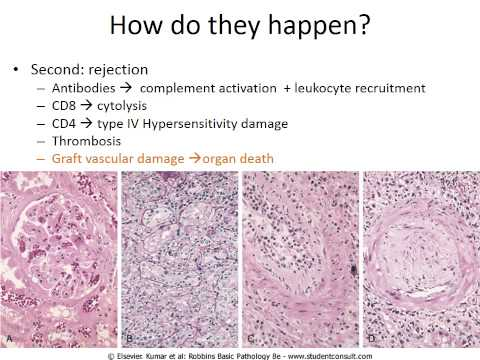 Hypersensitivity & autoimmune diseases, PART 2of2 Recorded Lecture