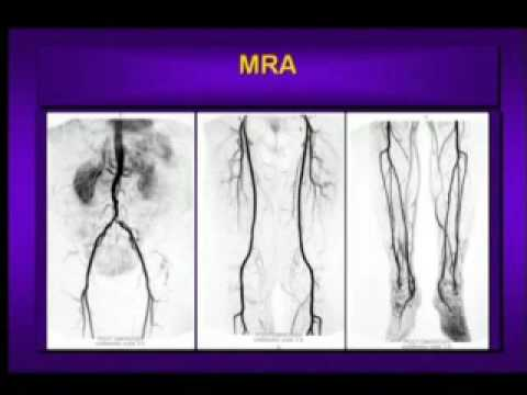 What is Peripheral Arterial Disease?