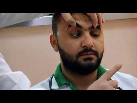 4th cranial nerve examination