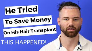 He Had Hair Transplant Surgery In Turkey To Save Money - This Happened