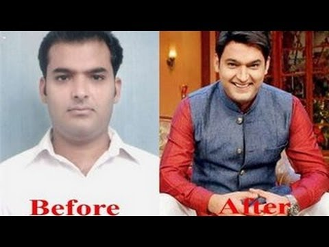 Kapil Sharma's SHOCKING HAIR TRANSPLANT!