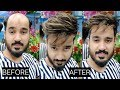 How to do self hair patch service at home part 3, by anas sheikh in Delhi, call us 9650914665
