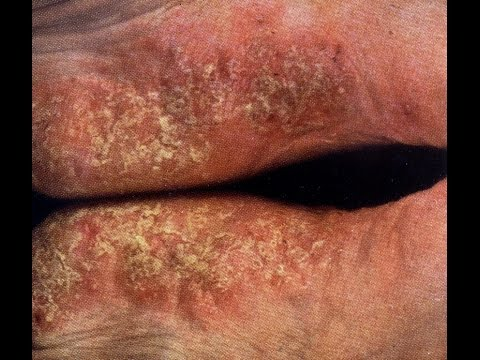 Update on Papulosquamous Rashes