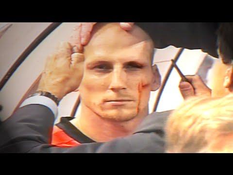 Jaap Stam eyebrow injury - EURO 2000 (Netherlands v Czech Republic)