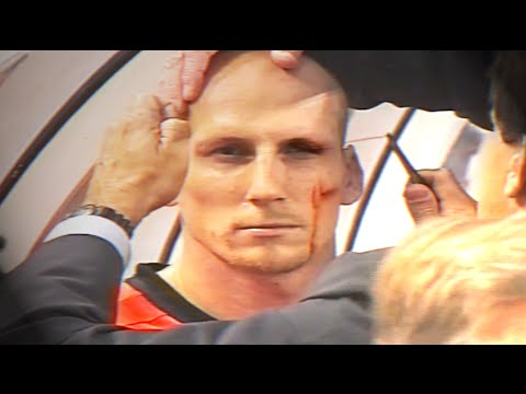 Jaap Stam eyebrow injury - EURO 2000 (Netherlands v Czech Republic)