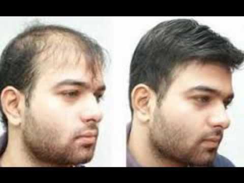 Trending Hair Fixing For Men Youtube