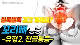 꼬리뼈 통증(유형 2형-천골통증)/ 척추후관절증후군/천…