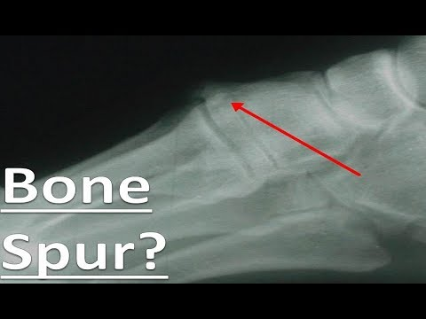 Lump Or Bone Spur On Top Of The Foot These Will Shock You