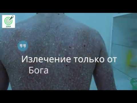 Лечение псориаза. Современные и народные методы лечения