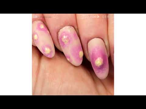 DIY HALLOWEEN EXPLODING PIMPLE NAILS | SQUEEZE SPOT NAIL ART | REALISTIC SFX CYST NAILART