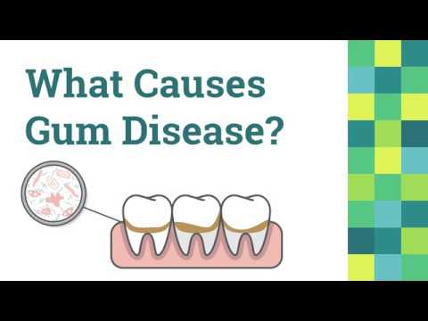 Gum Disease Treatment in Las Vegas & Summerlin at Wagner Dental
