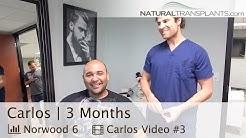 Hair Restoration Surgery 3 Month Post-Op, Best Hair Transplant Jacksonville Florida (Carlos)