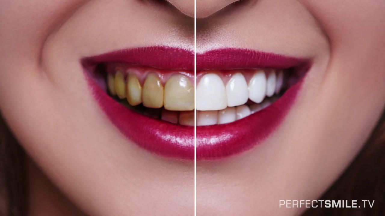 Wie kann man mit Veneers die Frontzähne verschönern - YouTube