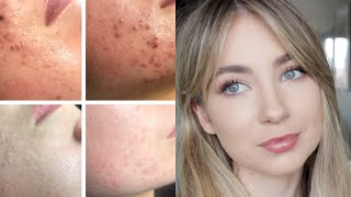 HOW I CLEARED MY HORMONAL ACNE NATURALLY 2020 // FAST RESULTS TO CLEAR YOUR SKIN