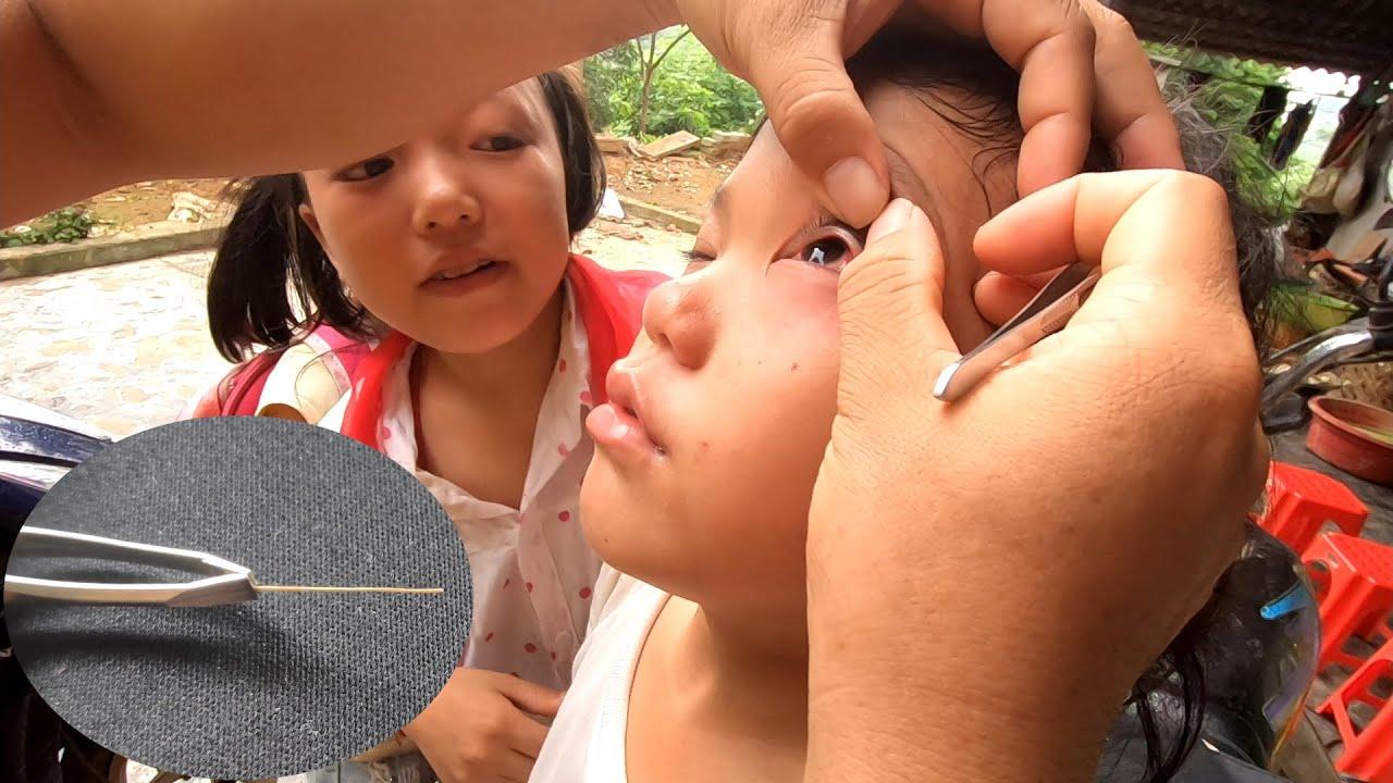 Sẩu Bị Dị Vật Vào Mắt | Cuộc Sống Hai Chị Em Mồ Côi 11 Tuổi Tại Nhà Trình Tường TV