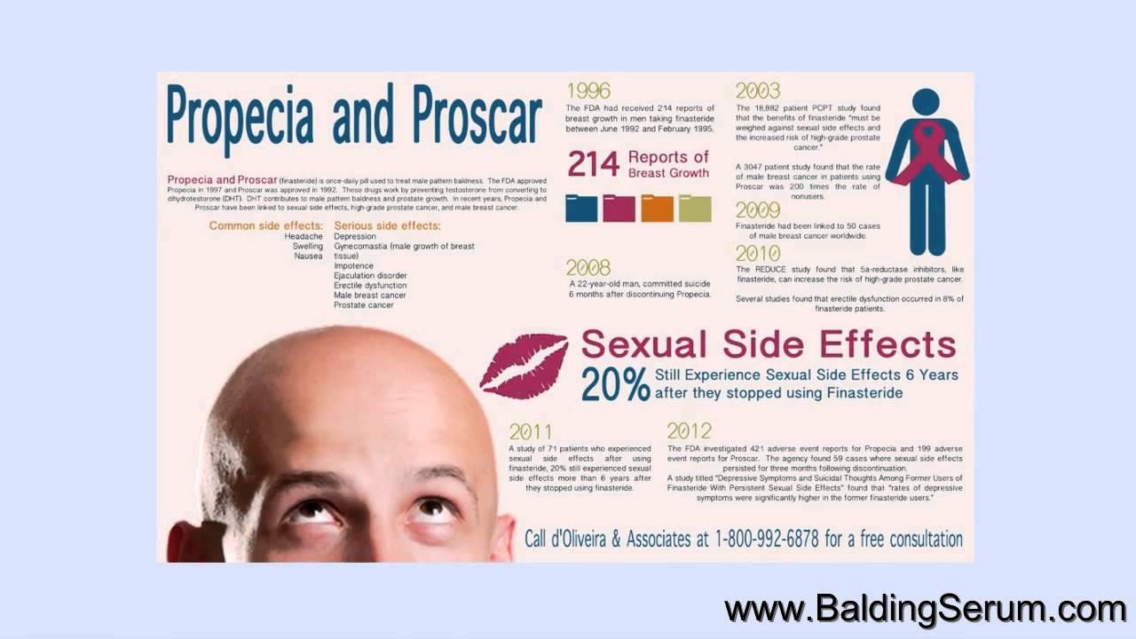 Hair Care - Hair Loss - Anti-Androgens: Finasteride ...