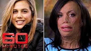 Turia Pitt was burned alive during an ultra-marathon | 60 Minutes Australia