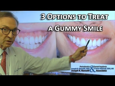 3 Options to Treat a Gummy Smile: Doctors Advice