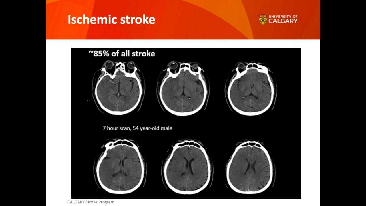 A faster way to treat stroke | Explore UCalgary