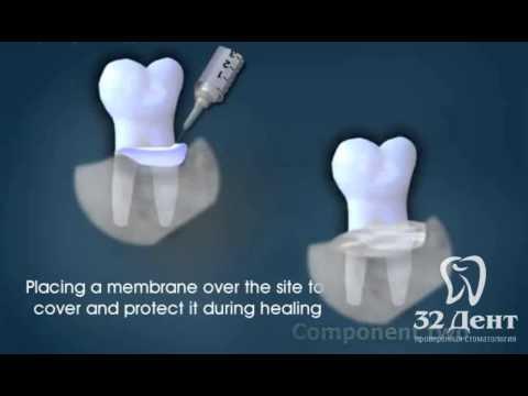 Альвеолит после удаления зуба: лечение сухой лунки у