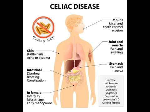 How to Treat and Cure Celiac Disease