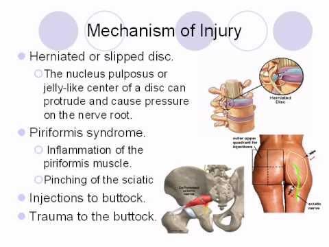 Sciatic Nerve Pain - YouTube