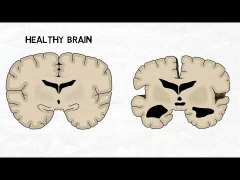 2-Minute Neuroscience: Alzheimer's Disease