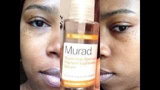 Product Review: Murad rapid Age Spot and Pigment Lightening Serum