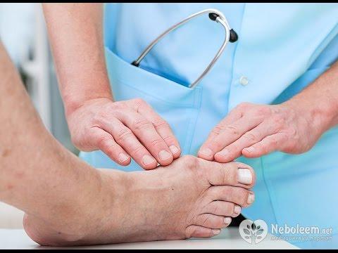 Почему болят косточки на ногах