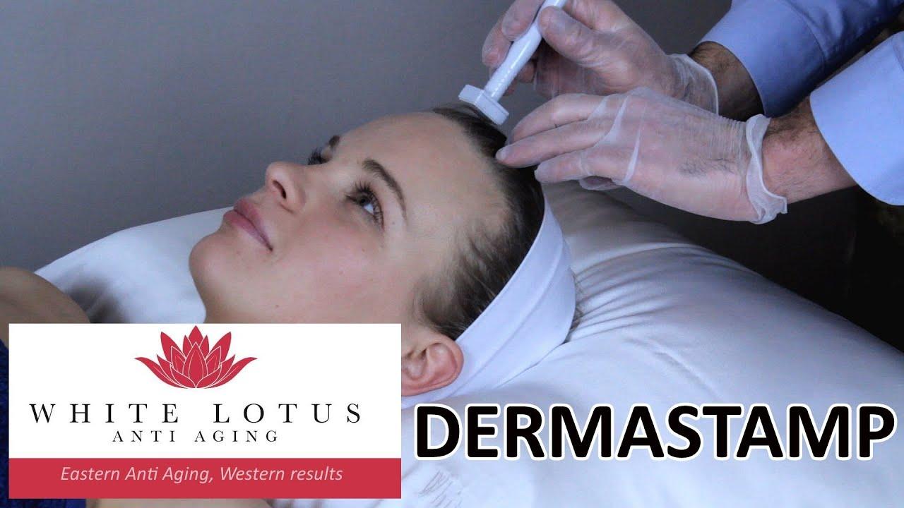 White Lotus Derma Stamp sterile skin needing – White Lotus