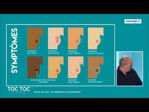 Comment reconnaître les symptômes du cancer du sein